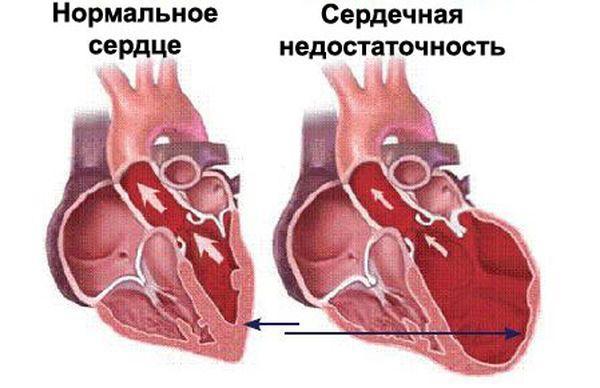 Здоровое сердце собаки и сердечная недостаточность